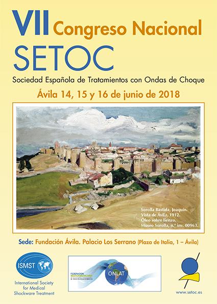 Congreso SETOC 2018